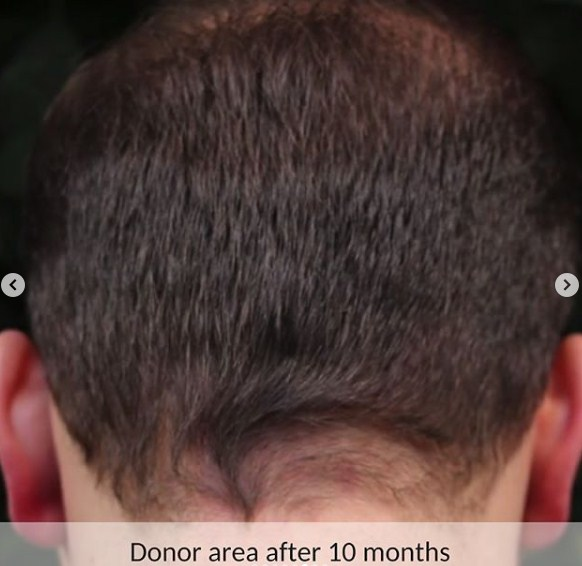 hair-transplant-in-turkey (2)