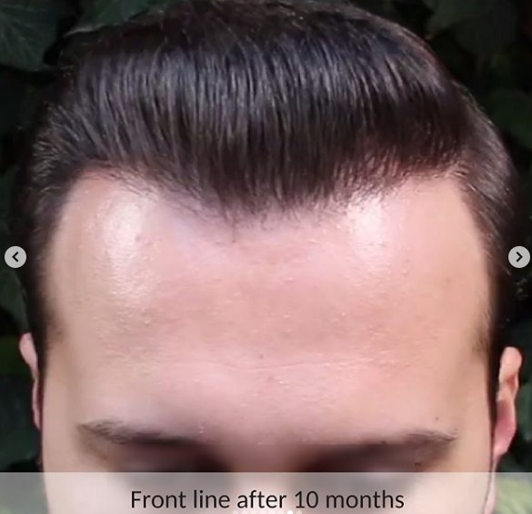 hair-transplant-in-turkey (3)