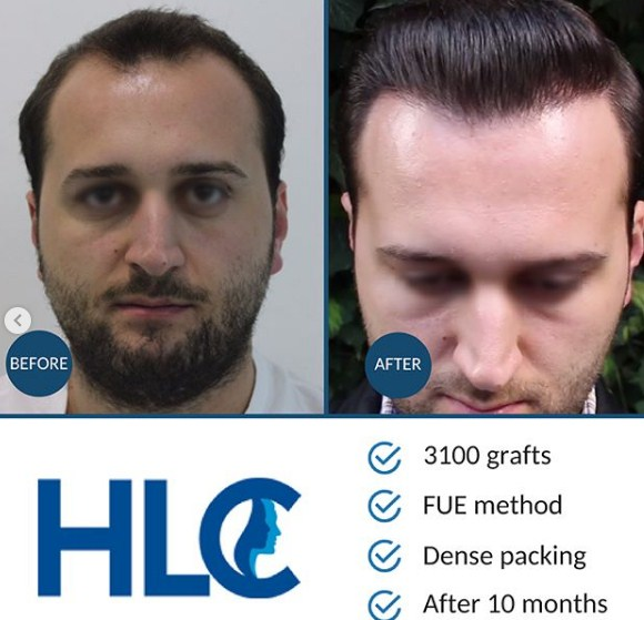 HLC-FUE HAIR TRANSPLANT 3100 GRAFTS