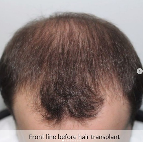 hair-transplant-in-turkey (5)