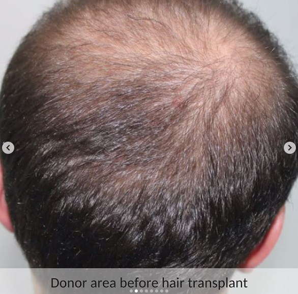 hair-transplant-in-turkey (6)