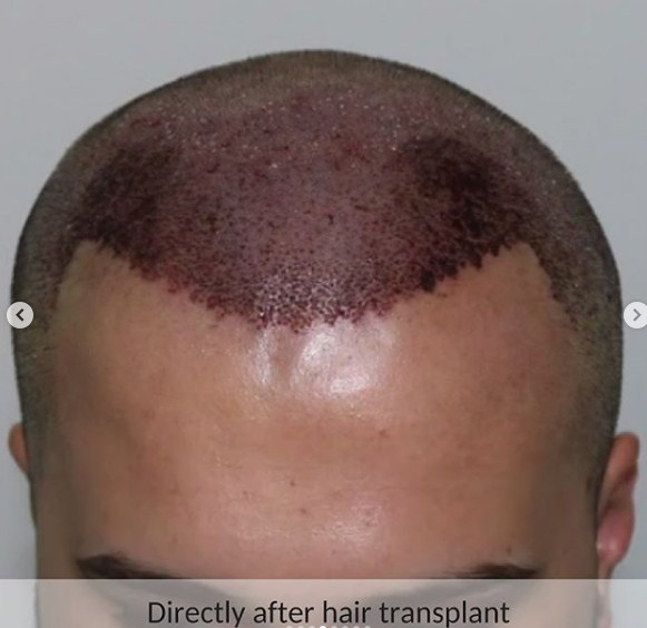 hair-transplant-in-turkey (8)