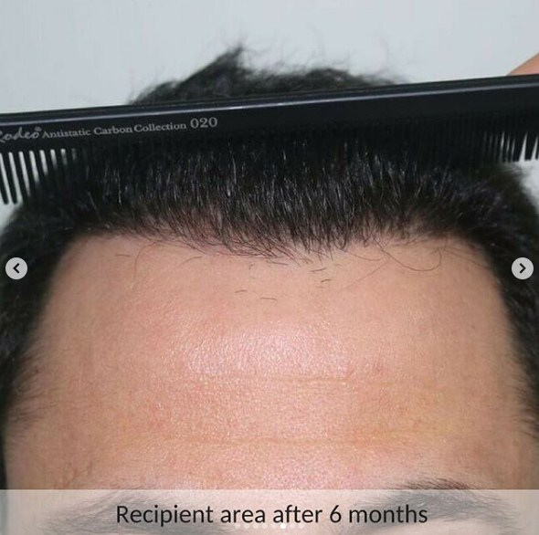 hair-transplant-in-turkey-review (1)