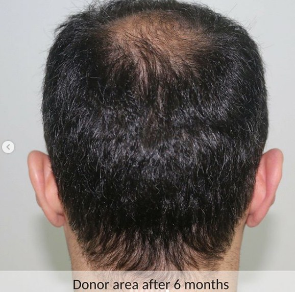 hair-transplant-in-turkey-review (3)
