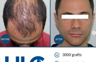 hair-transplant-in-turkey-review (4)