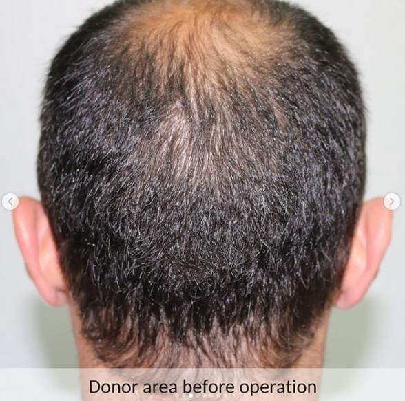 hair-transplant-in-turkey-review (6)