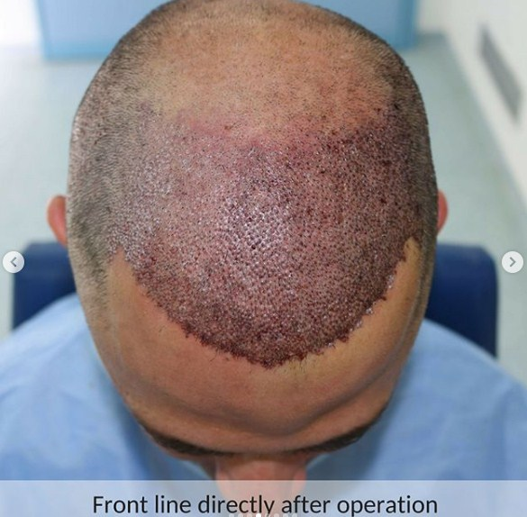 hair-transplant-in-turkey-review (7)