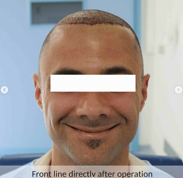 hair-transplant-in-turkey-review (8)