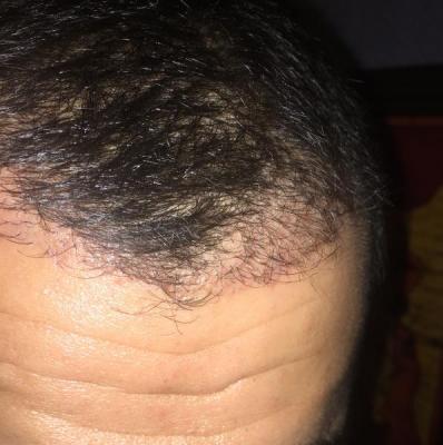 hair-transplant-turkey-best (3)