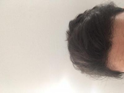hair-transplant-turkey-best (4)