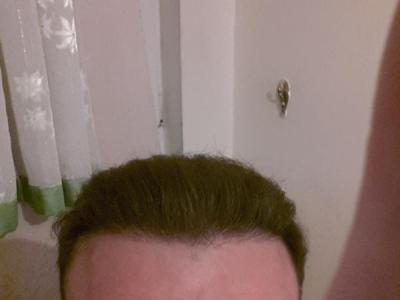 hair-transplant-turkey-blog (10)