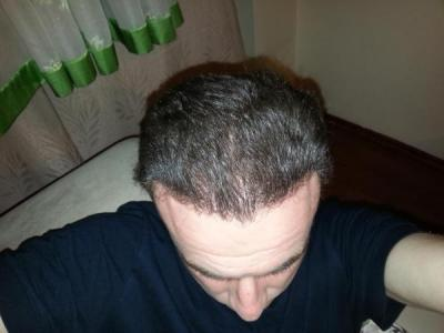 hair-transplant-turkey-blog (11)