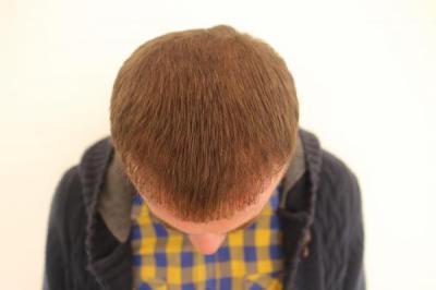 hair-transplant-turkey-blog (12)