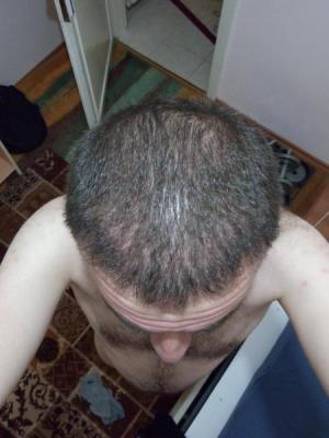 hair-transplant-turkey-blog (13)