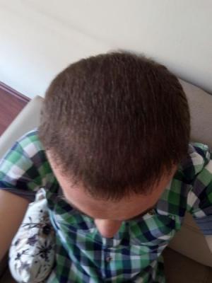 hair-transplant-turkey-blog (14)