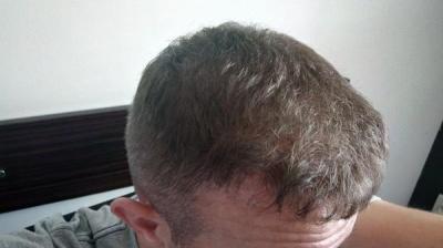 hair-transplant-turkey-blog (15)
