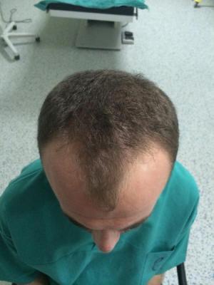 hair-transplant-turkey-blog (3)