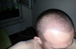 hair-transplant-turkey-blog (4)