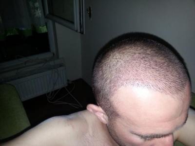 hair-transplant-turkey-blog (4)