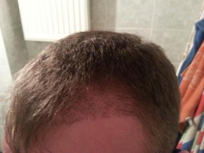 hair-transplant-turkey-blog (6)
