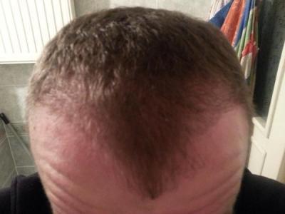 hair-transplant-turkey-blog (7)
