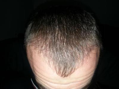 hair-transplant-turkey-blog (8)