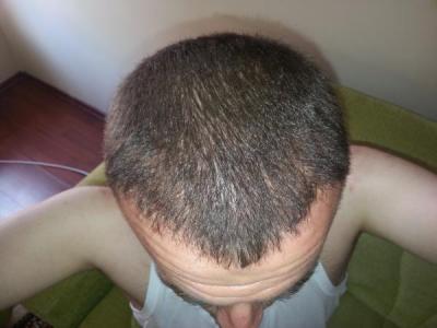 hair-transplant-turkey-blog (9)