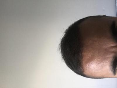 hair-transplant-turkey-cost (1)