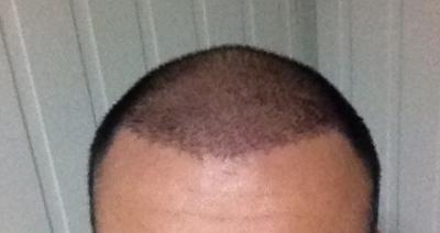 hair-transplant-turkey-cost (10)