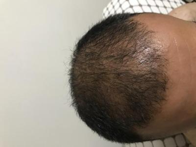 hair-transplant-turkey-cost (16)