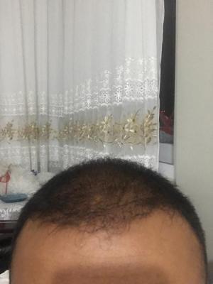 hair-transplant-turkey-cost (19)