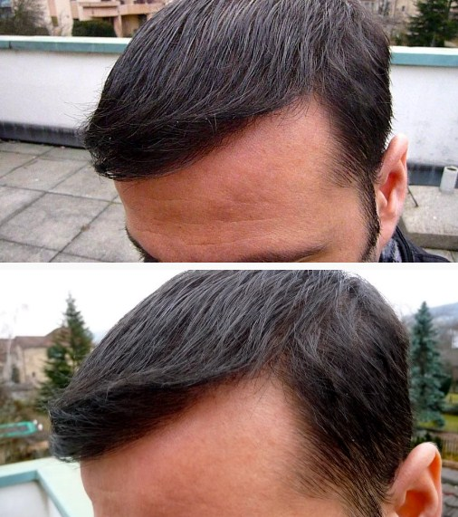 hair-transplant-turkey-cost (2)