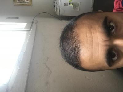 hair-transplant-turkey-cost (20)