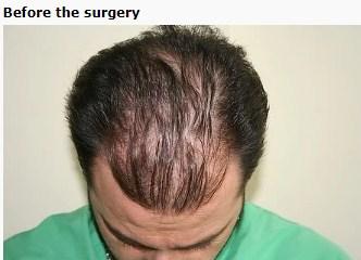 hair-transplant-turkey-cost (4)
