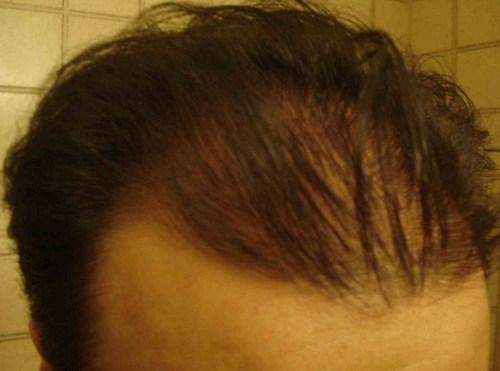 hair-transplant-turkey-cost (5)