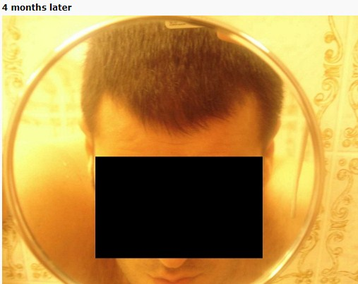 hair-transplant-turkey-cost (8)