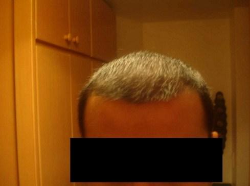 hair-transplant-turkey-cost (9)