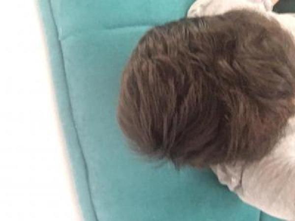 hair-transplant-turkey-forum (2)