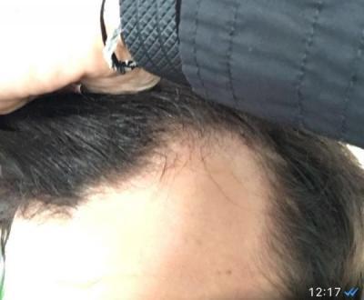 hair-transplant-turkey-istanbul (1)
