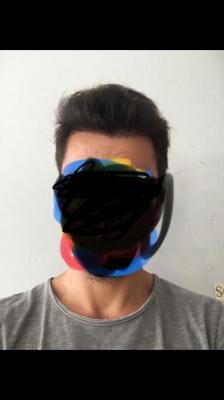 hair-transplant-turkey-istanbul (3)