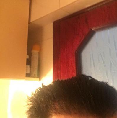 hair-transplant-turkey-istanbul (4)