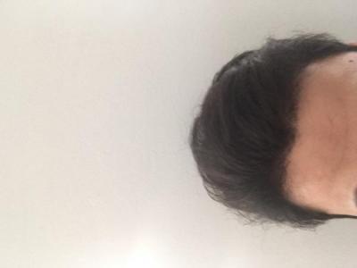 hair-transplant-turkey-istanbul (5)