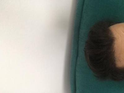 hair-transplant-turkey-package (3)
