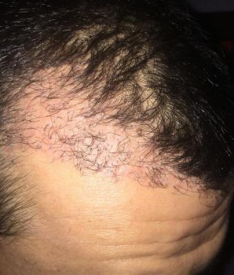 hair-transplant-turkey-reddit (4)