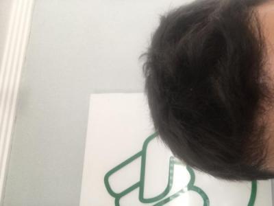 hair-transplant-turkey-results (3)
