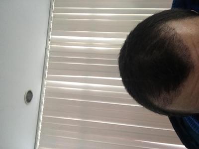 hair-transplant-turkey-results (4)