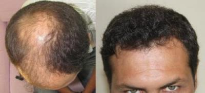 hair-transplant-turkey-review (1)