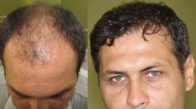 hair-transplant-turkey-review (12)