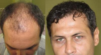 AHD HAIR CENTER-3900 GRAFTS