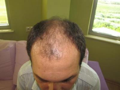 hair-transplant-turkey-review (2)